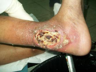 pie-diabetico-ulcera-en-talon