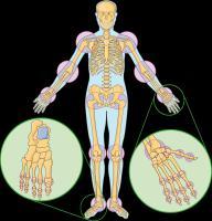 guia-efectiva-para-detener-la-artritis-reumatoidea-daños