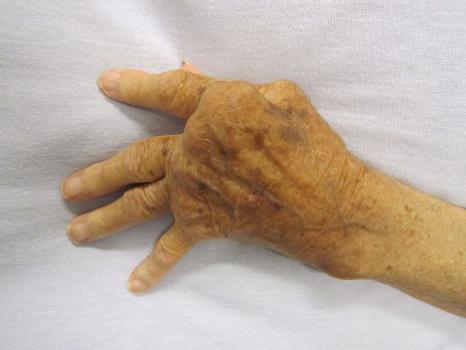 mano-enferma-artritis-reumatoidea